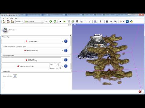 Live ultrasound volume reconstruction in 3D Slicer