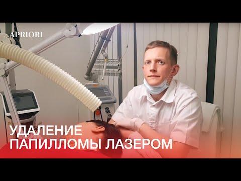 Как убирают папилломы лазером видео