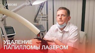 Удаление папилломы лазером в Дзержинске