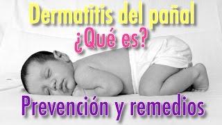 DERMATITIS DEL PAÑAL PREVENCIÓN Y REMEDIOS - Dr Oz Español