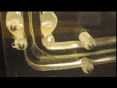 SpeediCath® Flex Coudé Demonstration Video