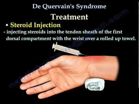 de quervain's steroid injection video