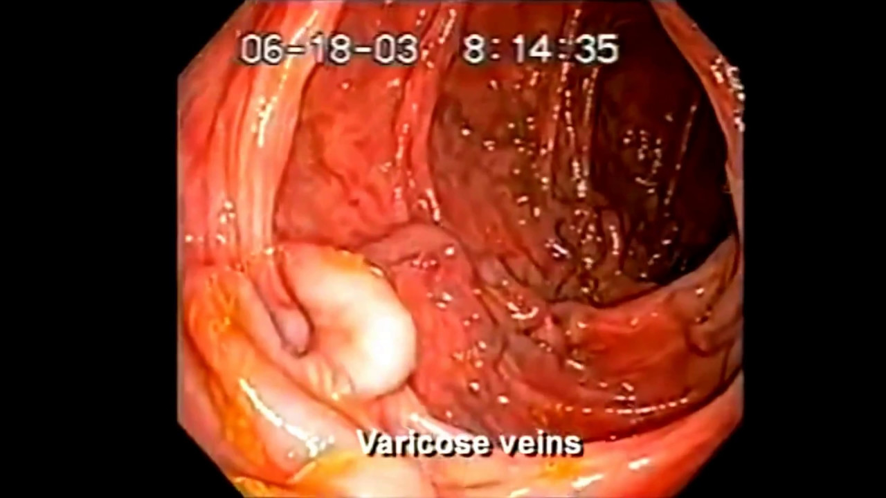 Dr Shinya Kangen Water Colon Cancer Youtube