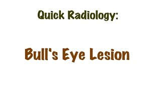 QUICK RADIOLOGY: Causes for Bull's eye lesion in stomach