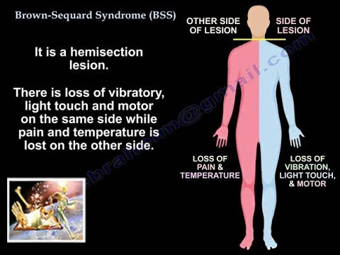 Brown Sequard Syndrome Everything You Need To Know Dr Nabil Youtube