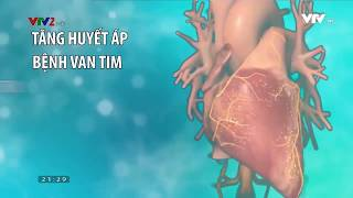 Cảnh giác với bệnh suy tim - điểm đến của các bệnh tim mạch