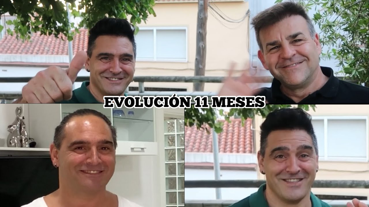 INJERTO CAPILAR BRUTAL EVOLUCIÓN 11 MESES