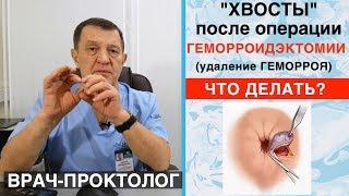 Хвосты после операции геморроидэктомии (удаление геморроя). Лечение геморроя