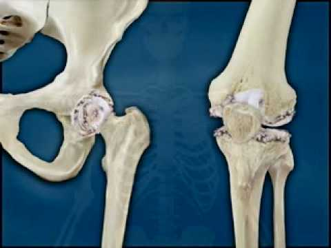Hip - Osteoarthritis - Fletcher Allen Health Care, Vermont