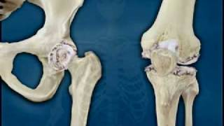Hip - Osteoarthritis - Fletcher Allen Health Care, Vermont
