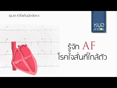 Ep41  หัวใจสั่นแบบ AF, atrial fibrillation