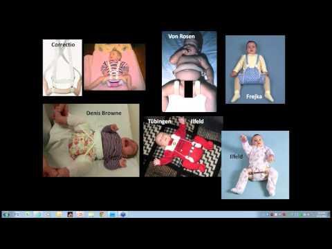 DDH Webinar Non surgical treatment Part 2 of 3