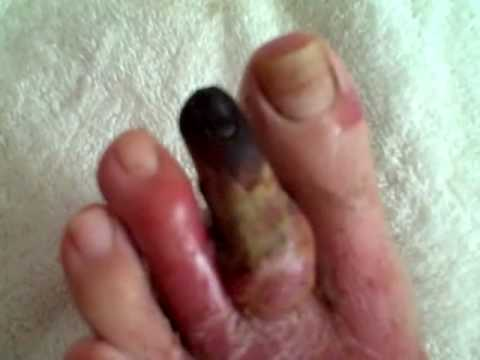 video 4 - URINE THERAPY + FASTING for diabetic gangrene dying black toe tip - falling off?
