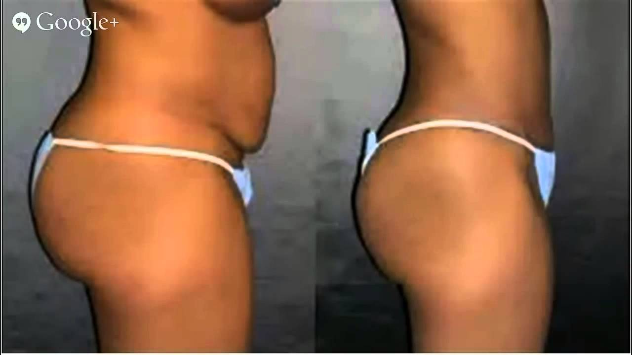 check out e3e2f 85c28 Cheap Liposuction Liposuction, Lipo, HD Lipo, - YouTube