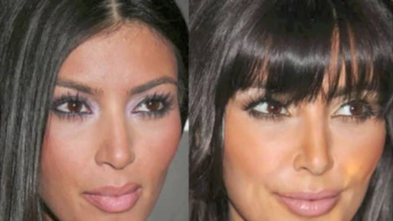 Celebrity zoom whitening