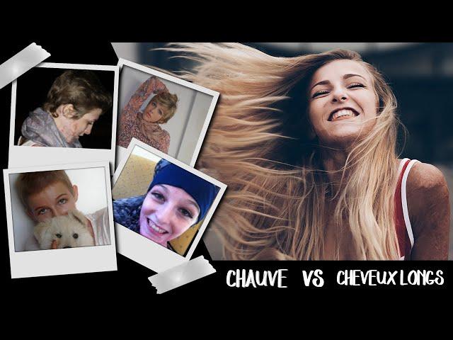 CHAUVE : COMMENT J'AI RETROUVÉ MES CHEVEUX LONGS.
