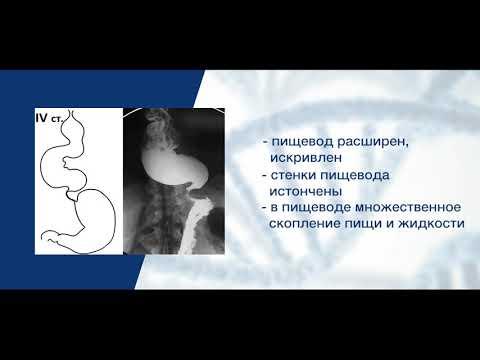 Ахалазия кардии: стадии, диагностика и лечение