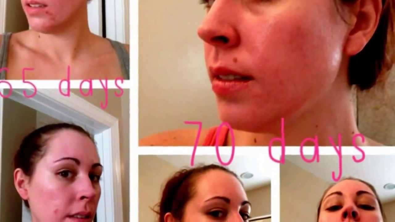 How Claravis (Accutane) Worked for Me - YouTube