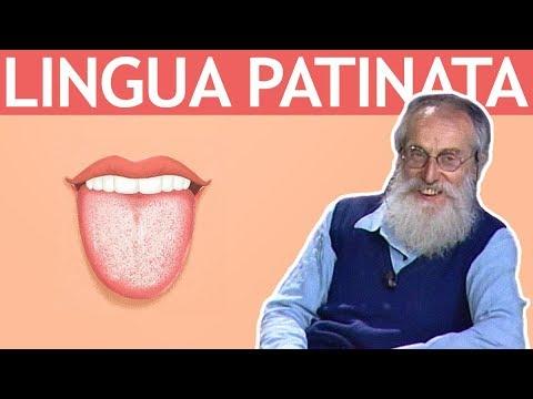 dott.-mozzi:-lingua-patinata