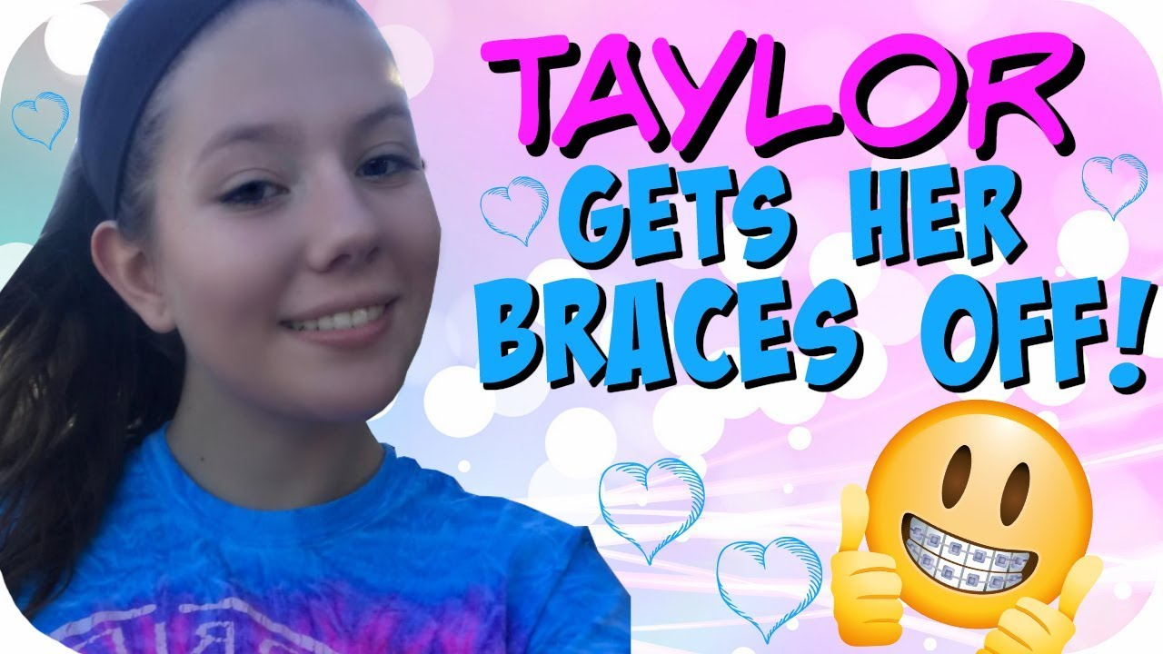 getting braces game