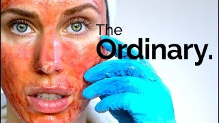 THE ORDINARY CHEMICAL PËEL FULL PROCESS - HOW TO USE THE AHA 30% BHA 2% PEELING SOLUTION