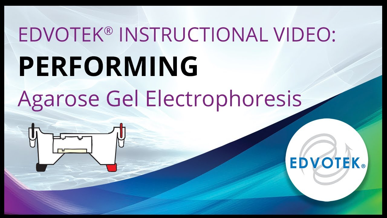 gel electrophoresis lab report