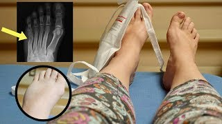I BROKE MY FOOT IN 5 PLACES (on my daughter's birthday)