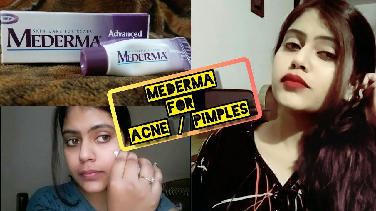 Mederma Advanced Scar Gel For Acne Scars म ह स पर
