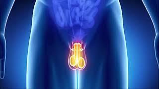 Mesane Kanseri - Prostat Kanseri - Tibeterdogru.com