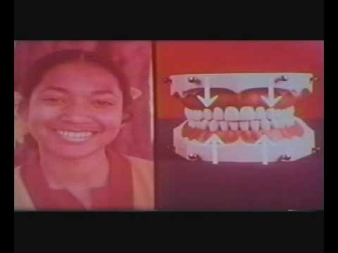 Wisdom Teeth - 1 Spanish