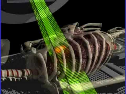 Respiratory Gating System Radiotherapy Trilogy Youtube