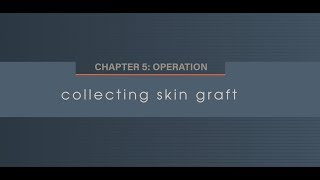 Chapter 5.6 Collecting Skin Graft