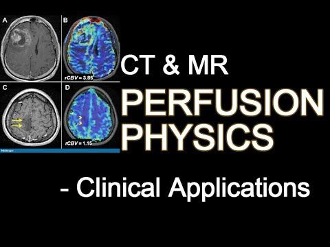 CT AND MR PERFUSION PHYSICS and its Clinical Applications - Radiology Seminar PPT Presentation