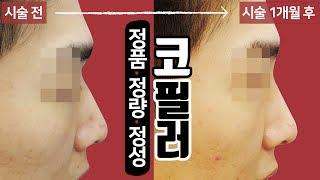 남자 코필러 시술 영상 톡스앤필 송파점 문정동 피부과,…