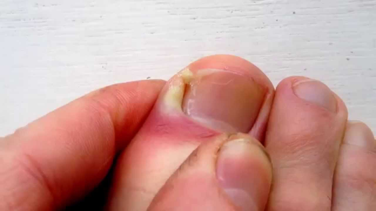Ingrown Toenail Pus - YouTube