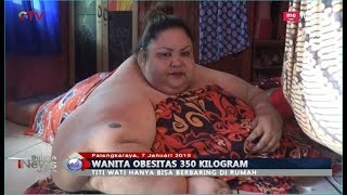 Download Video Potret Wanita Obesitas 350 Kg di Palangkaraya, Hanya Mampu Terbaring - BIM 07/01 MP3 3GP MP4