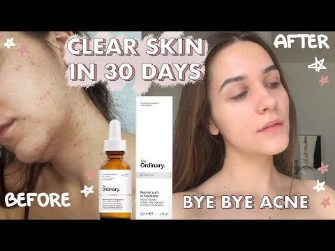 i-finally-cleared-my-skin-with-the-ordinary-products-*best-acne-out-skincare-routine*