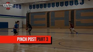 Pinch Post 3 on 0 (Part 3)