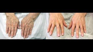 видео Невероятно быстрое омоложение кожи рук