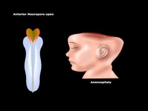 USMLE® Step 1: Neuroscience: Development of CNS Animation