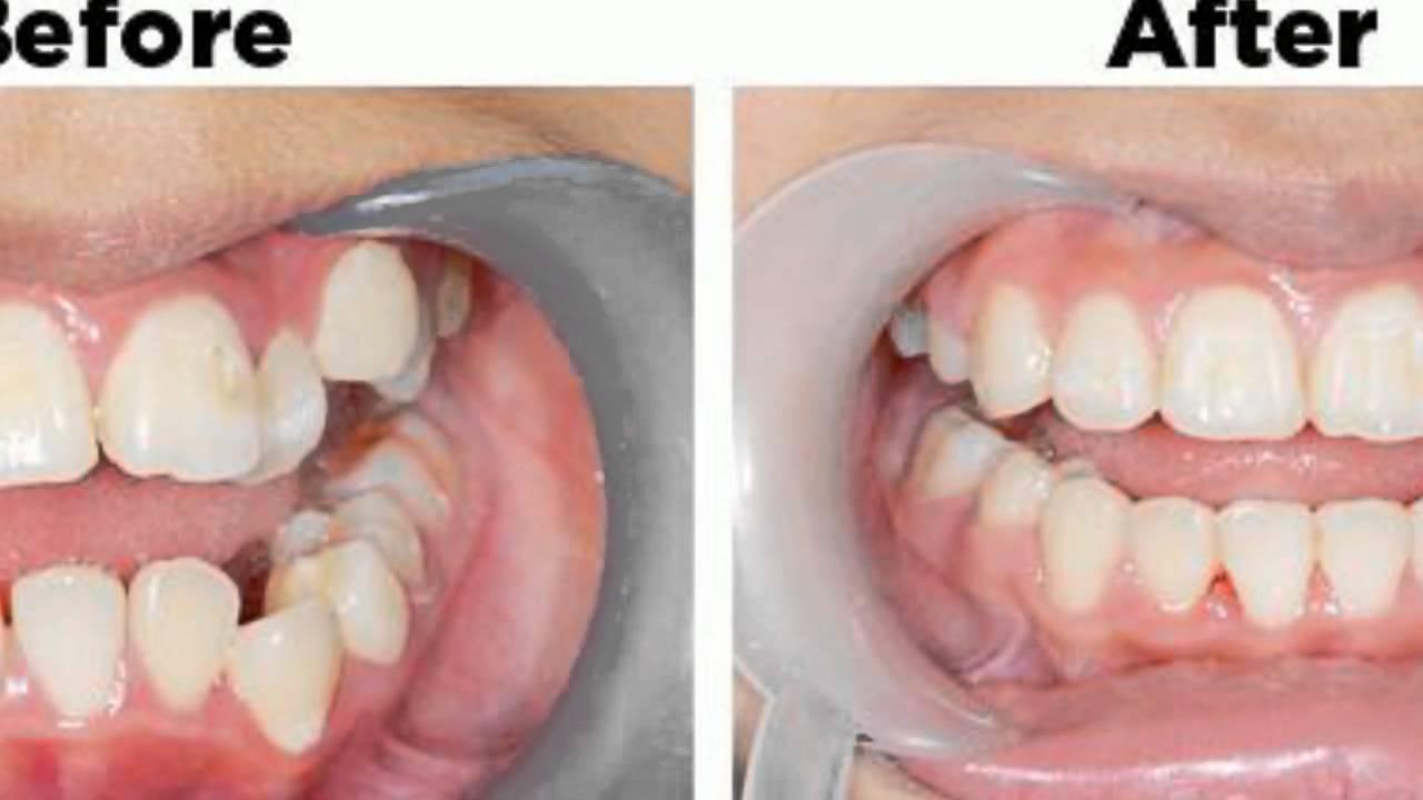 Lassen schiefe zähne richten Zähne richten