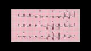 Reading the 12-lead ECG/EKG - six quick steps