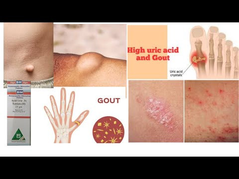 Uric acid homeopathy medicine uses and sign symptoms? Homeopathic medicine acid uric