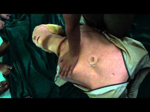 Hồi sinh tim phổi (CAB)