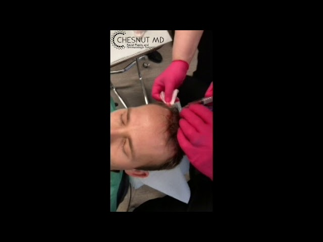 Matrix enhanced platelet rich plasma (ME PRP) for hair restoration with Dr. Chesnut