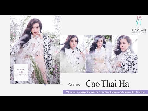 vietnamese-actress-cao-thai-ha's-beauty-secrets-|-lavian-aesthetic-plastic-surgery