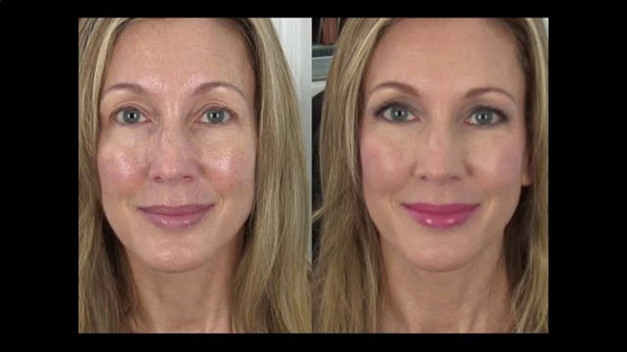 Image result for anti-wrinkle eye before after