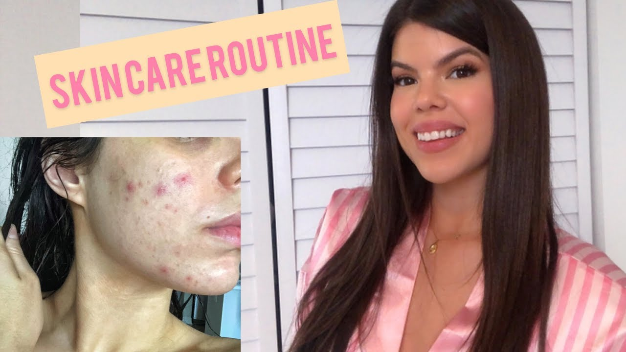 SKINCARE ROUTINE HOW I GOT RID OF MY ACNE