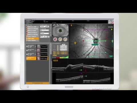 NIDEK RS-3000 Demo Video