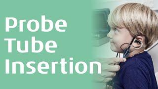 REM - Probe tube insertion